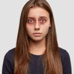 От чего появляются синяки под глазами и как с ними бороться?